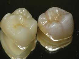 Zirconia crowns for dental tourists